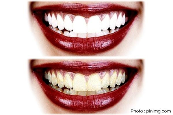 ทาลิปฟันขาว-02-01