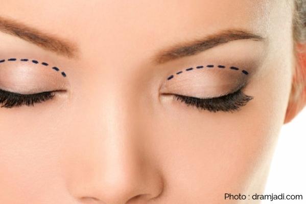 สร้างตาสองชั้น-03-01